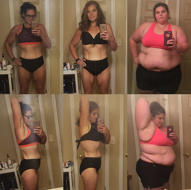Weight loss, Adjusting to life  of loose skin