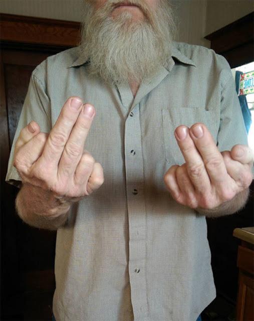 Pria Yang Memiliki 6 Jari Di Setiap Tangan Dan Dia Menggunakan 2 Jari Untuk Membalik Seseorang