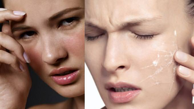 Mengatasi Kulit Wajah Mengelupas Akibat Kosmetik