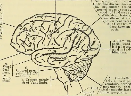 Brain tumor symptoms and types of treatment method explained 2020