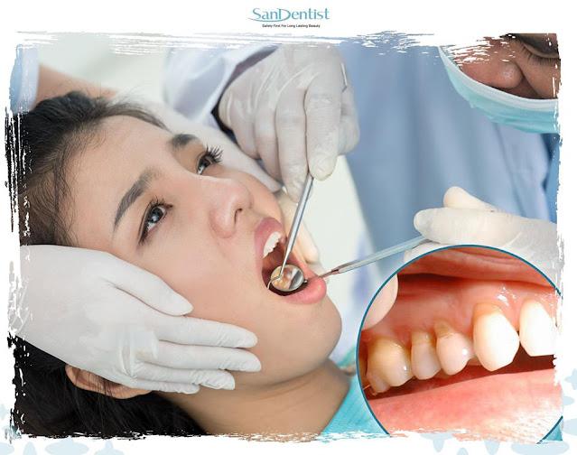 Tùy tình trạng răng mà cân nhắc niềng răng hay bọc răng sứ