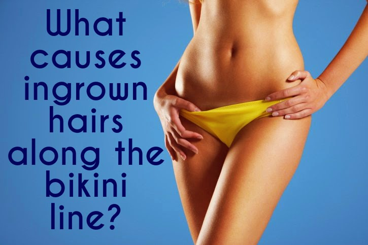 What causes ingrown hairs on the bikini line?