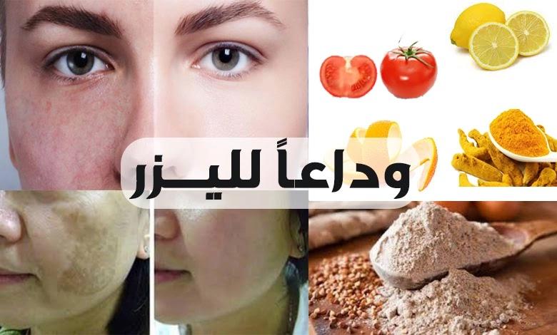 علاج تصبغات الوجه الطبيعية
