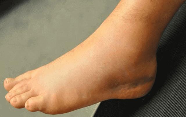 ما علاج اصابة الكاحل