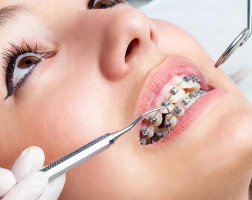 Niềng răng có đau không và đâu là giải pháp giảm cơn đau 1