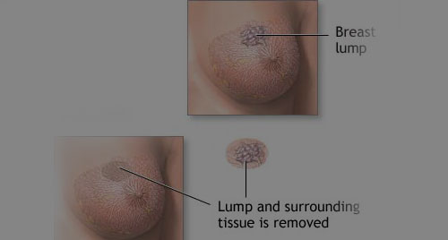 If you notice a breast lump