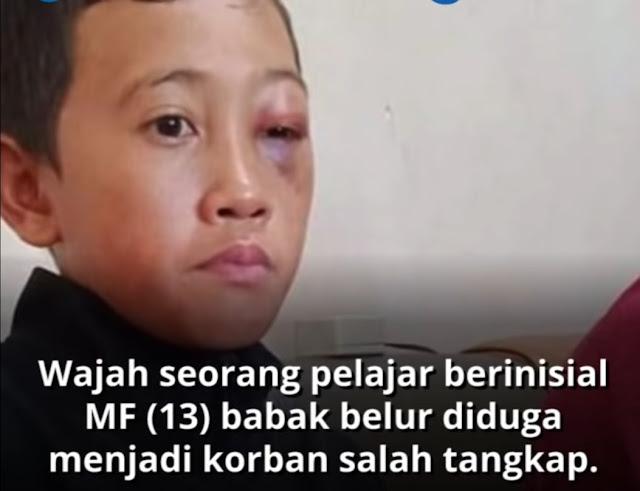 Penjelasan Polisi soal Salah Tangkap Bocah 13 Tahun yang Dianiaya Petugas hingga Alami Lebam