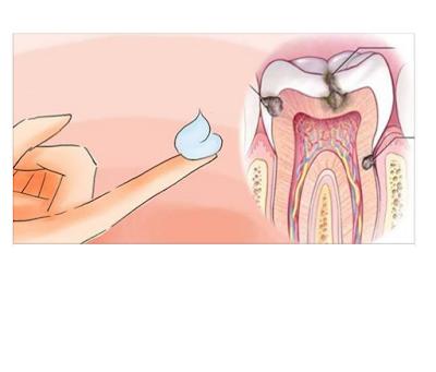 امنع زيادة التسوس في أسنانك وأنتشارة أكثر بهذه الطريقة