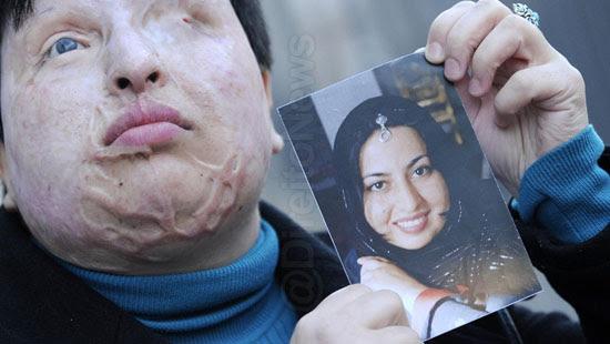 jovem rosto deformado direito cegar agressor