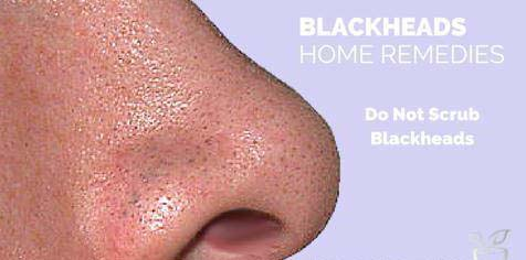 Best Ways to Get Rid Blackhead and Whitehead on Nose