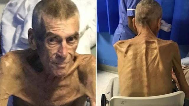 Londres niega beneficios vitales a hombre enfermo de 38 kilógramos
