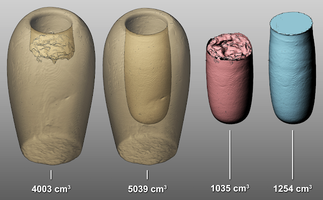 Medical imaging is lifting the lid on ancient Egyptian canopic jars