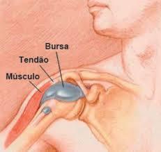 Dor no ombro: como tratar a dor que irradia para o pescoço, braço e costas.. Como saber se o ombro está inflamado? Sintomas de tendinite no ombro Dor localizada intensa no ombro que pode surgir de repente, ou se agravar após o esforço e tende a piorar a noite devido ao estiramento dos músculos ao dormir; Dificuldade para levantar o braço, acima da linha dos ombros; Sensação de que a dor se espalhou por todo o braço