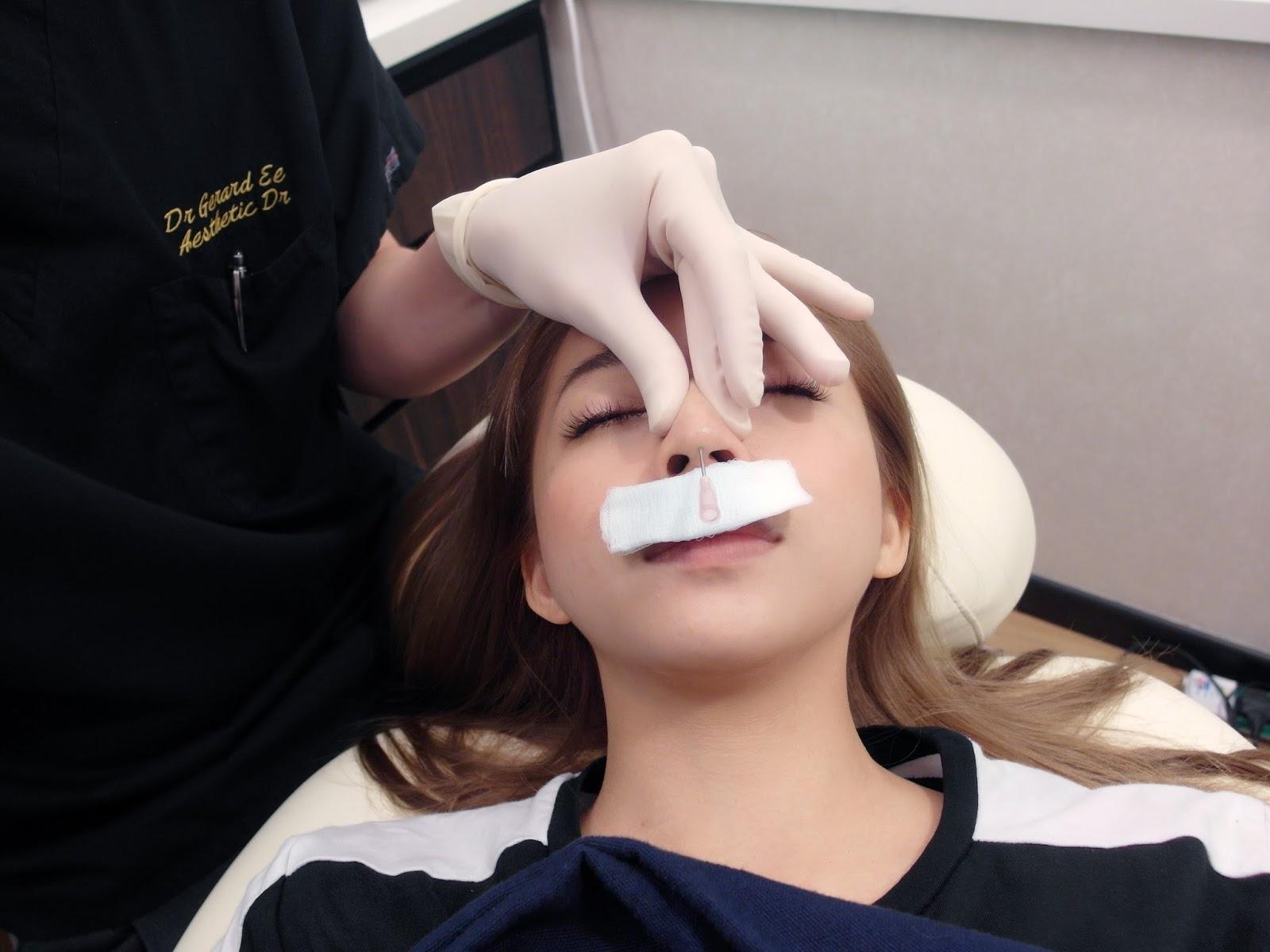 Petiteksf: Ultra V Hiko Nose thread lift at The Clifford Clinic!