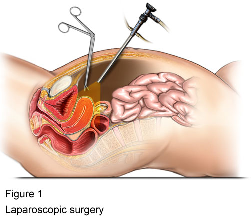 What, Why, When and How Laparoscopic Procedure