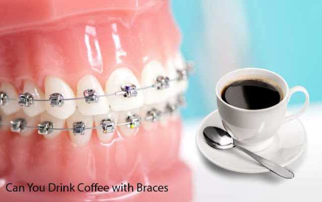 Can You Drink Coffee with Braces