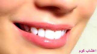 وصفة سهلة وصحية لتبييض الاسنان من اول استعمال