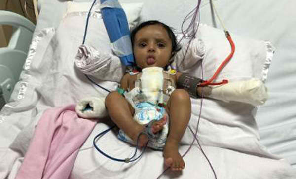 Four-Year-Old Mumbai Girl Survives Twenty Heart Attacks In Two Months