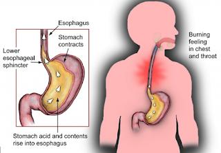 Cara Mengatasi Esofagitis yang Ampuh dan Mujarab