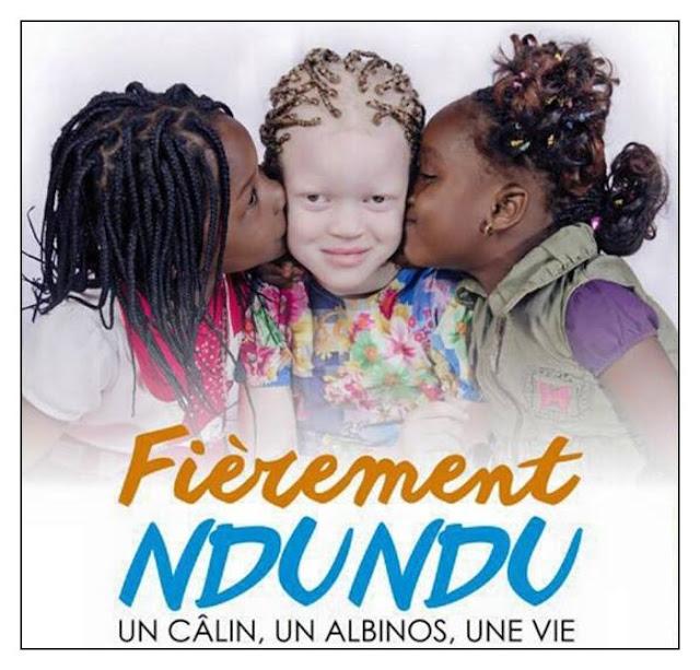 Mouvements des Albinos ,Albinisme,actualité, marche, kinshasa, rdc,ndundu,