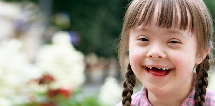 El silencioso genocidio de los niños con síndrome Down