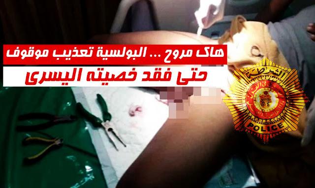 Monastir : Le Parquet ouvre une enquête sur la torture d'un jeune détenu