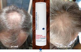 Na ratunek włosom - najlepszy sposób na łupież
