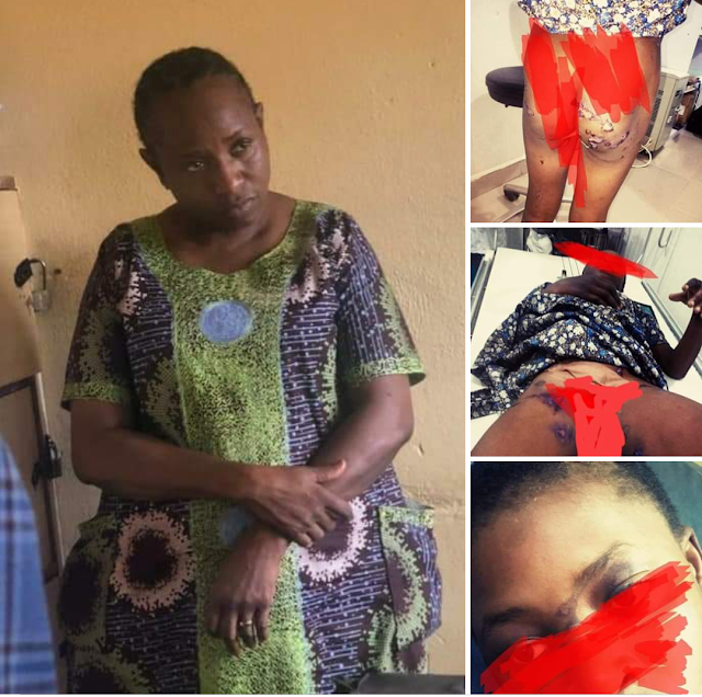 How on Earth Can A Mother Be This Wicked and Heartless - See What She Did to A Girl