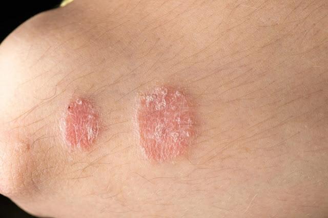 Bệnh về da ở người cao tuổi hay xuất hiện