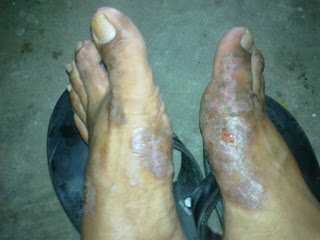 kulit kaki hitam dan gatal tebal dan terasa kasar