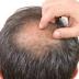 Menumbuhkan Rambut Botak dengan Khasiat Bahan Alami