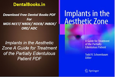 Implants in the Aesthetic Zone A Guide for Treatment of the Partially Edentulous Patient PDF