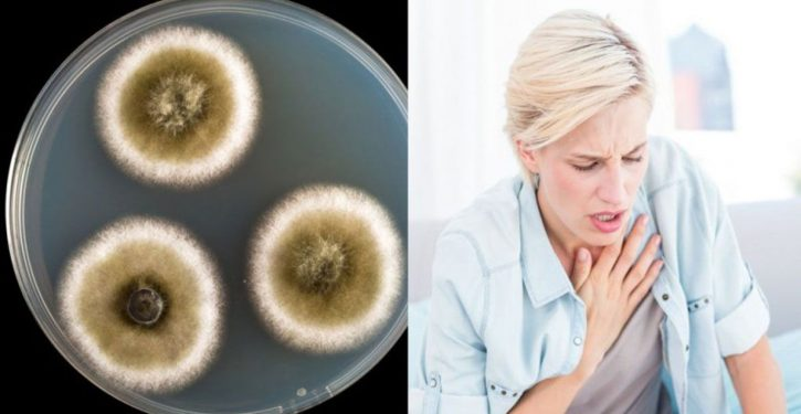 Mold Disease Spreads Everywhere: Here Are 11 Signs That Prove You Have It