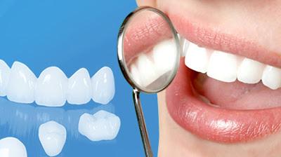 Tổng hợp thông tin chi tiết về phương pháp bọc răng sứ Titan.