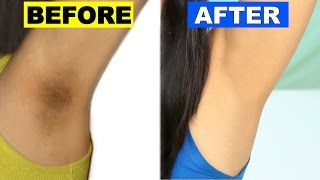 How To Lighten Dark Underarms Permanently | Skincare Routine