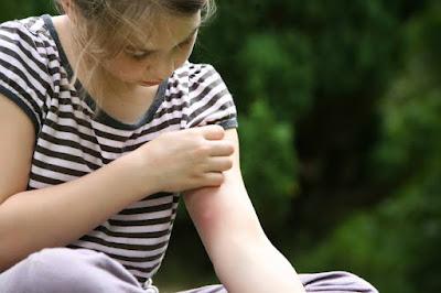 5 dicas caseira pra aliviar a picada de insetos.