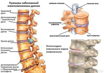 Остеохондроз лечение в Одессе. Причины, симптомы, диагностика, лечение