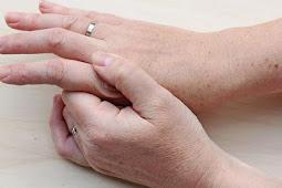 Mengenal Penyakit Sendi Asam Urat -Penyebab, Gejala & Pengobatan-