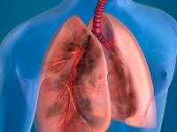 Pengaruh sinusitis terhadap kesehatan