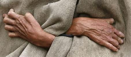 Stop Diskriminasi dan Berikan Kesempatan Kerja Bagi Penderita Kusta