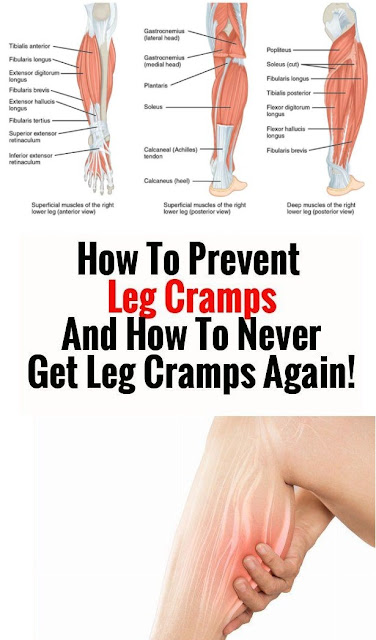 How To Prevent Leg Cramps And How To Never Get Leg Cramps Again!!!