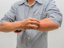 10+ How to relieve itchy skin and to Treat Naturally