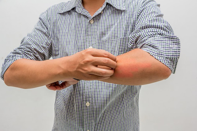 How to relieve itchy skin and to Treat Naturally