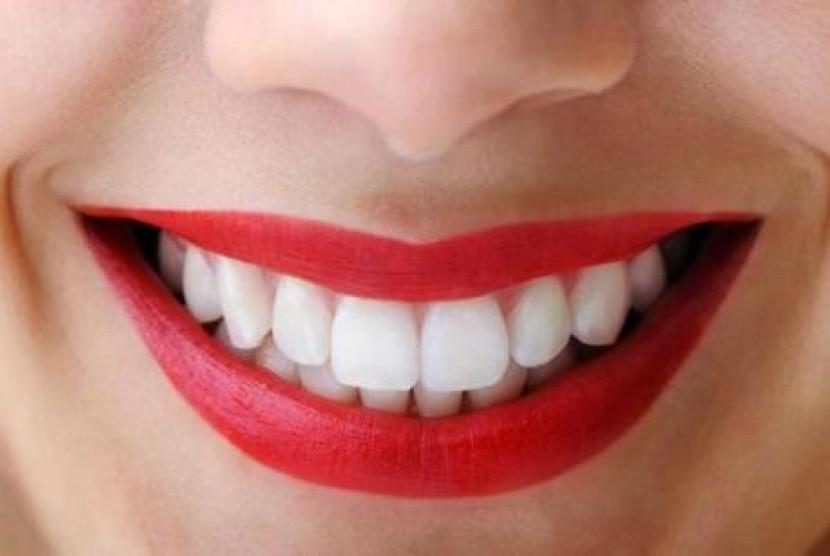 Mau Punya Gigi Putih Dan Sehat Alami Yuk Simak Tips Memutihkan Gigi