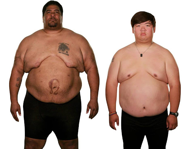 Extreme Weight Loss Center