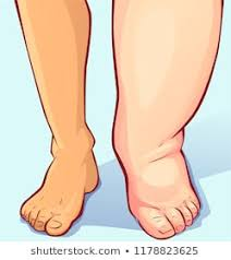 Edema is increased fluid in the interstitial tissue spaces or it is a fluidaccumulation in the body cavities in excessive amount