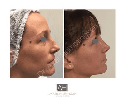 cirugia de nariz antes y despues