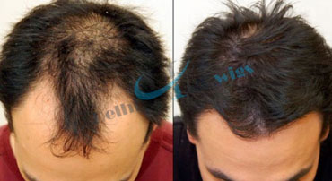 Hair weaving in faridabad hair weaving cost in faridabad hair wigs in delhi is offering a unique different technique which calls hair weaving in very low rates every people can think for this non surgical treatment pmusecretfo Image collections