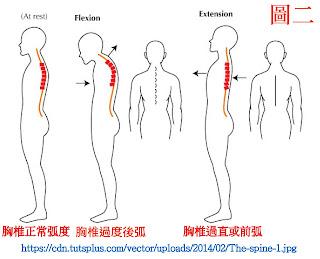脊椎側彎, 脊椎側彎背架, 脊椎度數,脊椎側彎矯正, 脊椎側彎治療, 脊椎側彎 復健