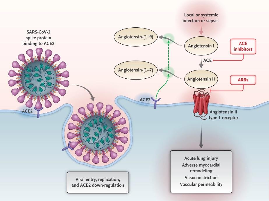 Inhibidores del sistema renina-angiotensina-aldosterona en pacientes con Covid-19